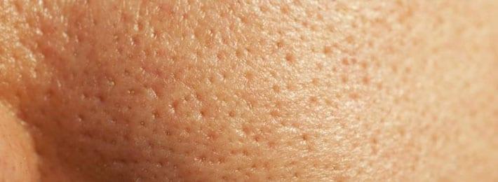 پوست چرب